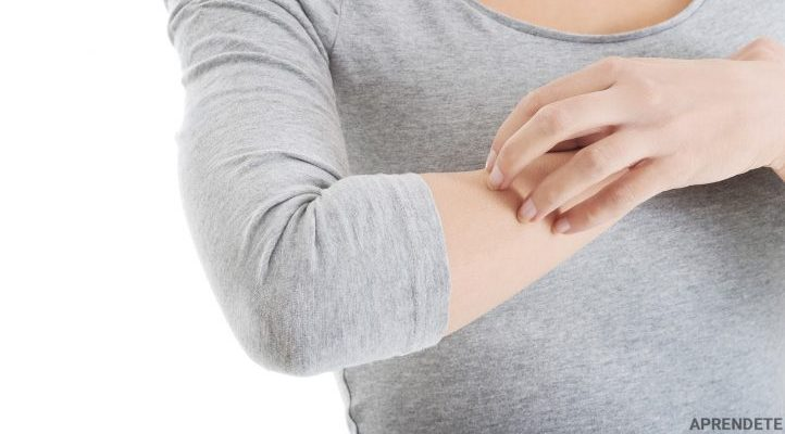 Young woman is scratching herself on arm. Isolated on white.