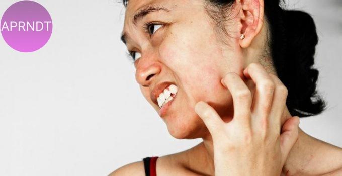 Remedios homeopáticos para el estrés en la piel